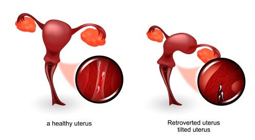 الرحم المقلوب الأسباب والأعراض والعلاج ويب طب