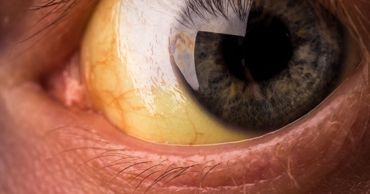 6d8e84bf8 الاسباب المختلفة لاصفرار العين - ويب طب