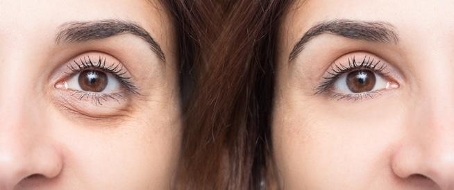 ما هي أسباب رفة العين؟