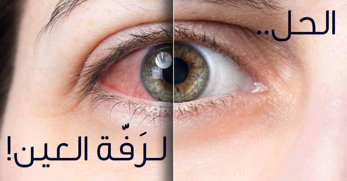 تعرف على أسباب رفة العين اليسرى واليمنى ويب طب