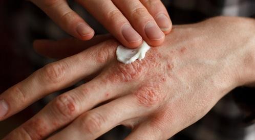 علاج الصدفية بالأعشاب والطرق الطبيعية - ويب طب