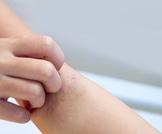 أعراض وعلاج الجرب عند الأطفال