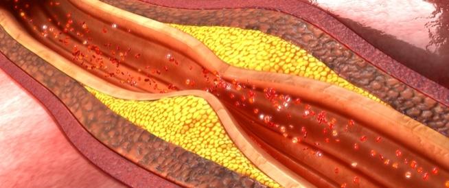 الشرايين التاجية: مرضها قد يقتل عضلة قلبك!