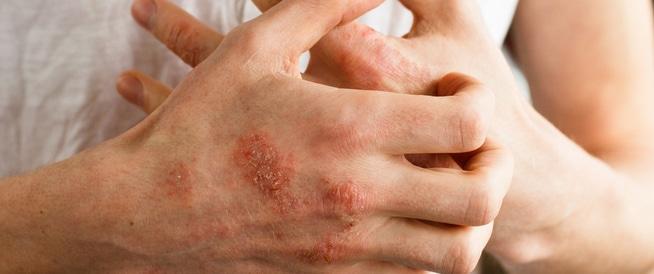 أكزيما اليد: الأسباب والعلاج
