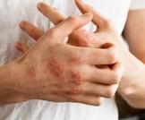 أسباب وعلاج أكزيما اليد