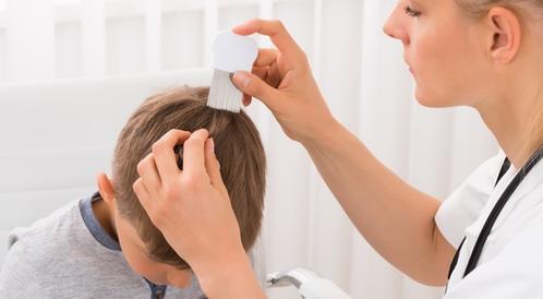مرض الثعلبة عند الاطفال