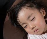 علاج فرط التعرق عند الأطفال