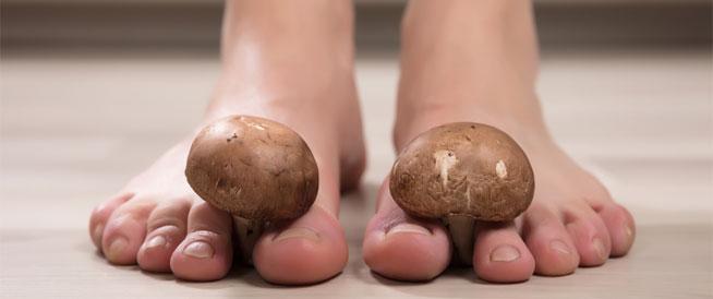 فطريات بين الأصابع: أسباب وعلاجات
