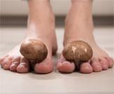 أسباب وعلاج فطريات الأصابع