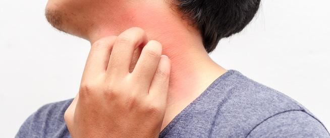 حكة الجلد: ألاسباب العابرة والخطيرة