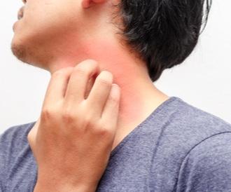 حكة الجلد: أكثر من 30 سبب بين العابر والخطير!