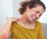 أبرز أمراض جلدية معدية