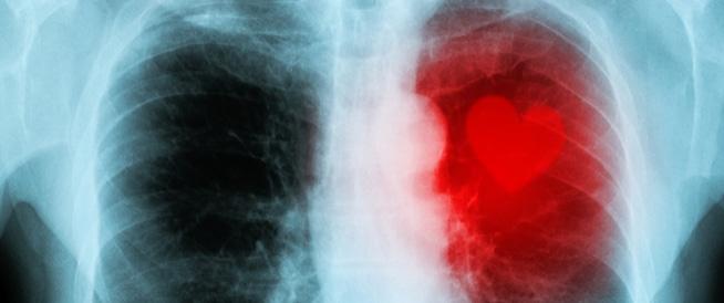 روماتيزم القلب: أهم المعلومات!