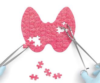 مخاطر عدم علاج الغدة الدرقية على الصحة