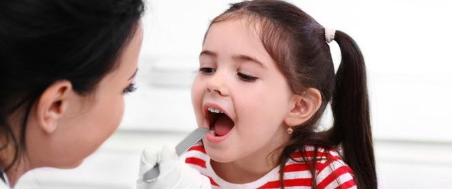 التهاب الحلق لدى الأطفال