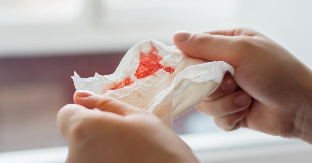 خروج الدم من الفم الأسباب والعلاج ويب طب