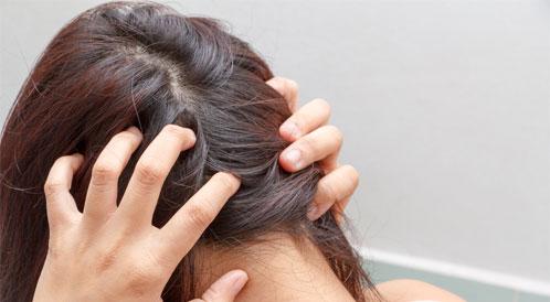 الوقاية من أمراض فروة الرأس