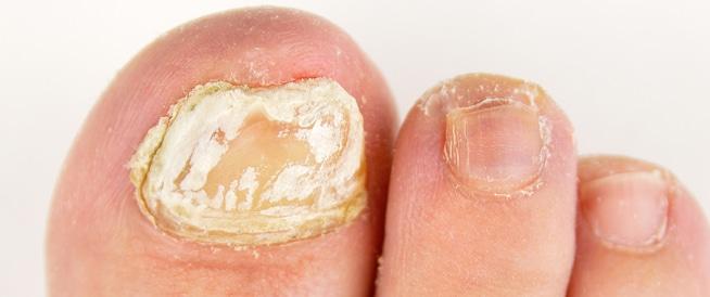 فطريات الأظافر: الأعراض والعلاجات المختلفة