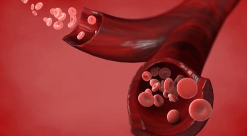 ارتفاع عدد خلايا الدم الحمراء