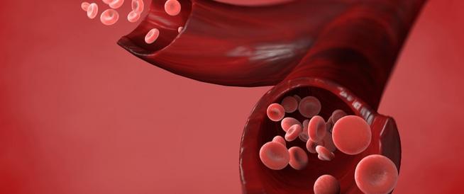 ما الذي يسبب ارتفاع عدد خلايا الدم الحمراء؟
