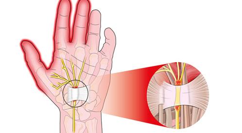 أسباب وعلاج تصلب الأعصاب