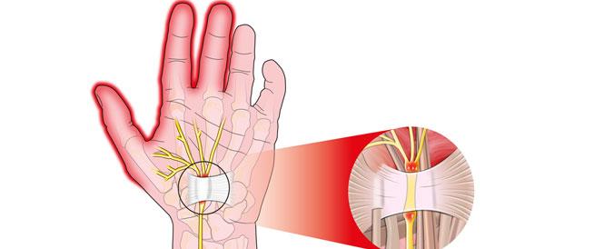 تصلب الأعصاب: أسباب وأعراض وعلاجات