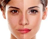 أسباب وعلاج تغير لون الجلد
