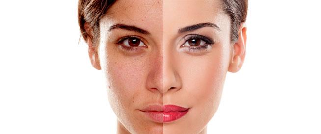 أسباب تؤدي إلى تغير لون الجلد وكيفية التعامل معها