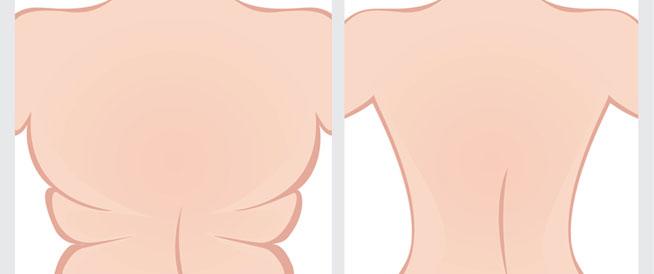 تكدس الدهون في الظهر: أسباب وحلول
