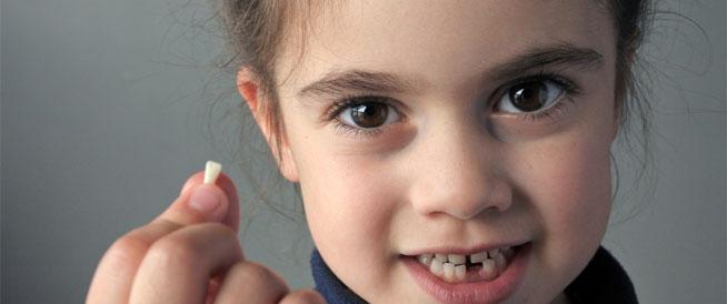 تأخر تبدل الأسنان عند الأطفال: هل يشكل خطورة؟