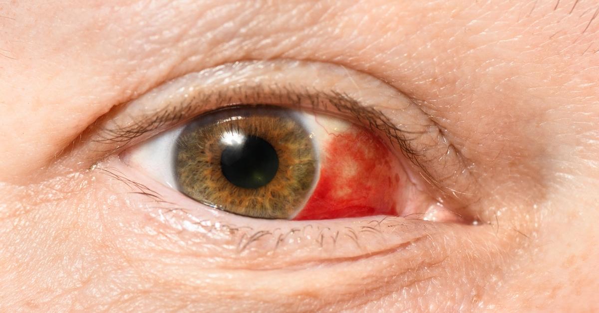 كل المعلومات حول العين الحمراء ويب طب