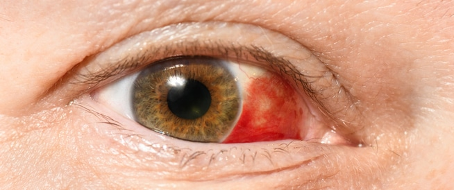 العين الحمراء: ما هي؟
