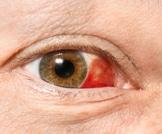 ما هي العين الحمراء