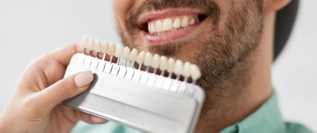 عدسات الأسنان اللاصقة