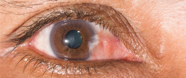 ظفر العين: حالة شائعة ... فهل هي خطيرة؟