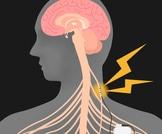 العصب الحائر ما هو ؟