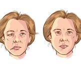 اعراض العصب السابع
