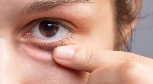 علاج انتفاخ العين منزلي ا ويب طب