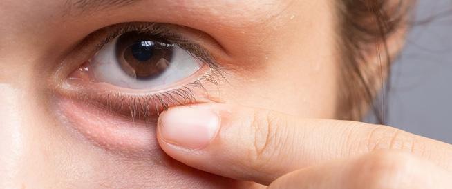علاج انتفاخ العين: تورم الجفون وهالات سوداء وأمور أخرى!