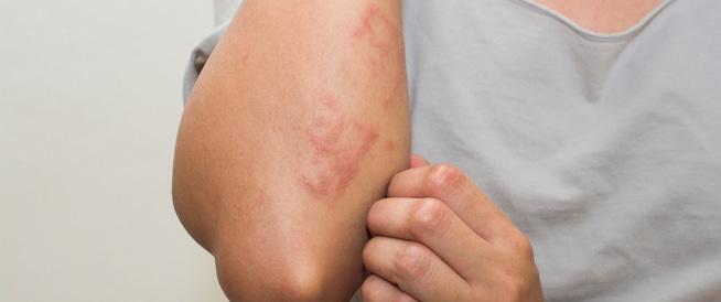 علاج حساسية الجلد بالاعشاب