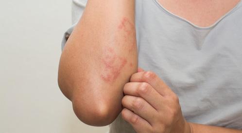 علاج حساسية الجلد بالأعشاب ويب طب