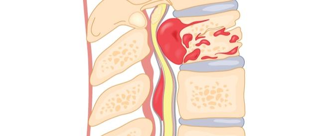 أعراض ضغط فقرات الرقبة على الأعصاب ويب طب