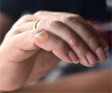 أسباب وعلاج فقاعات الجلد