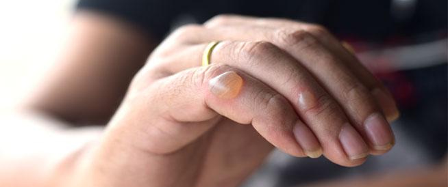 فقاعات الجلد: أسباب عديدة وطرق علاجية
