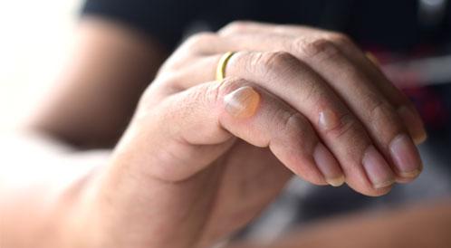 فقاعات الجلد أسباب عديدة وطرق علاجية ويب طب