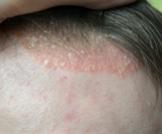 اكزيما الشعر: أسبابها وطرق علاجها