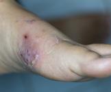 التهاب النسيج الخلوي