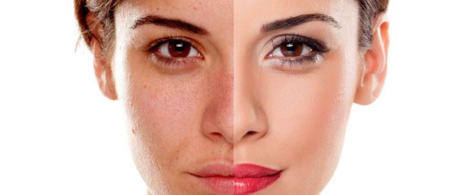 عادات يومية تدمر صحة الجلد