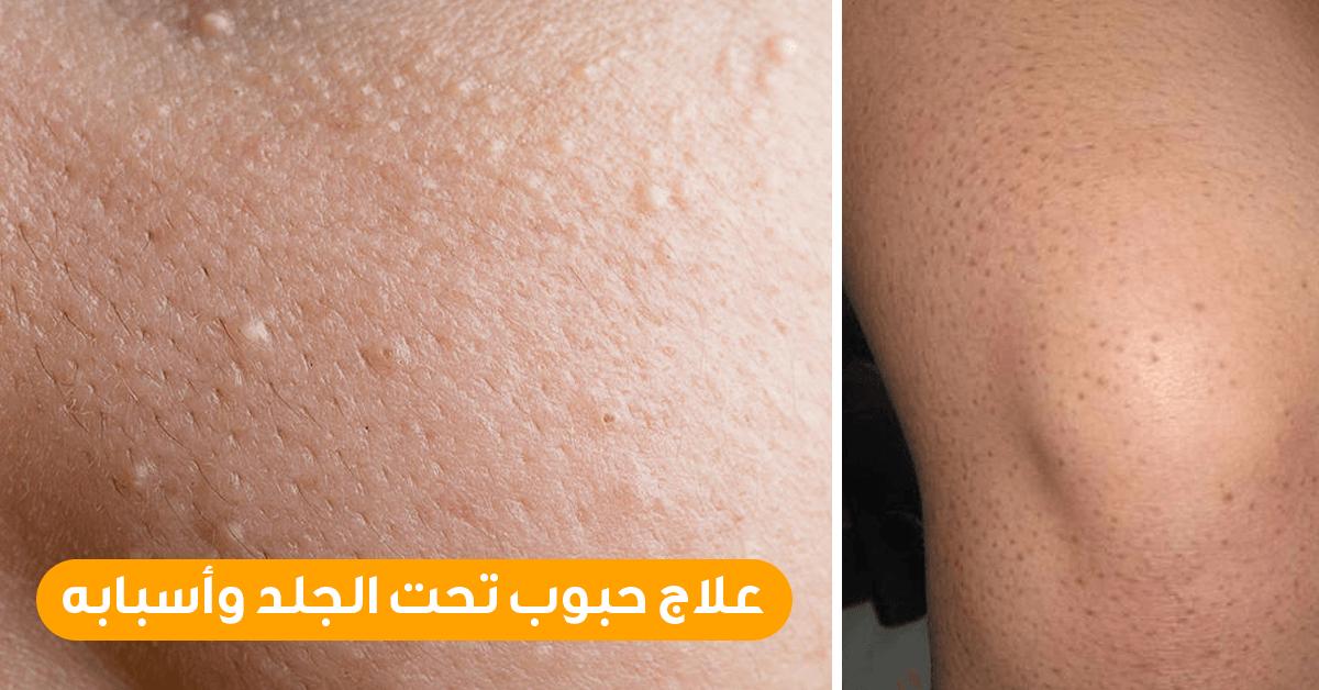 علاج حبوب تحت الجلد وأسبابه ويب طب