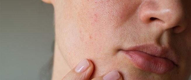 التهاب بشرة الوجه: الأسباب والعلاجات الطبيعية